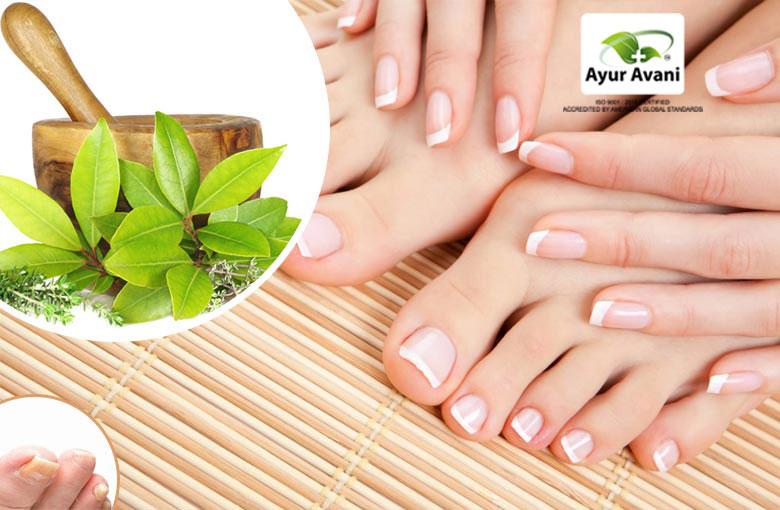 Toenail Fungus - 100% Natural Home Remedies | Ayuravani